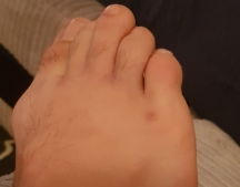 Cutting Weight - Swolen Toes/Foot